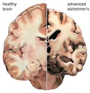 alzheimer brain 290x300 Benzodiazepines make the headlines!
